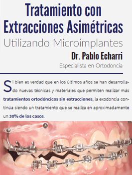 #LecturaRecomendada: Tratamiento con extracciones asimétricas