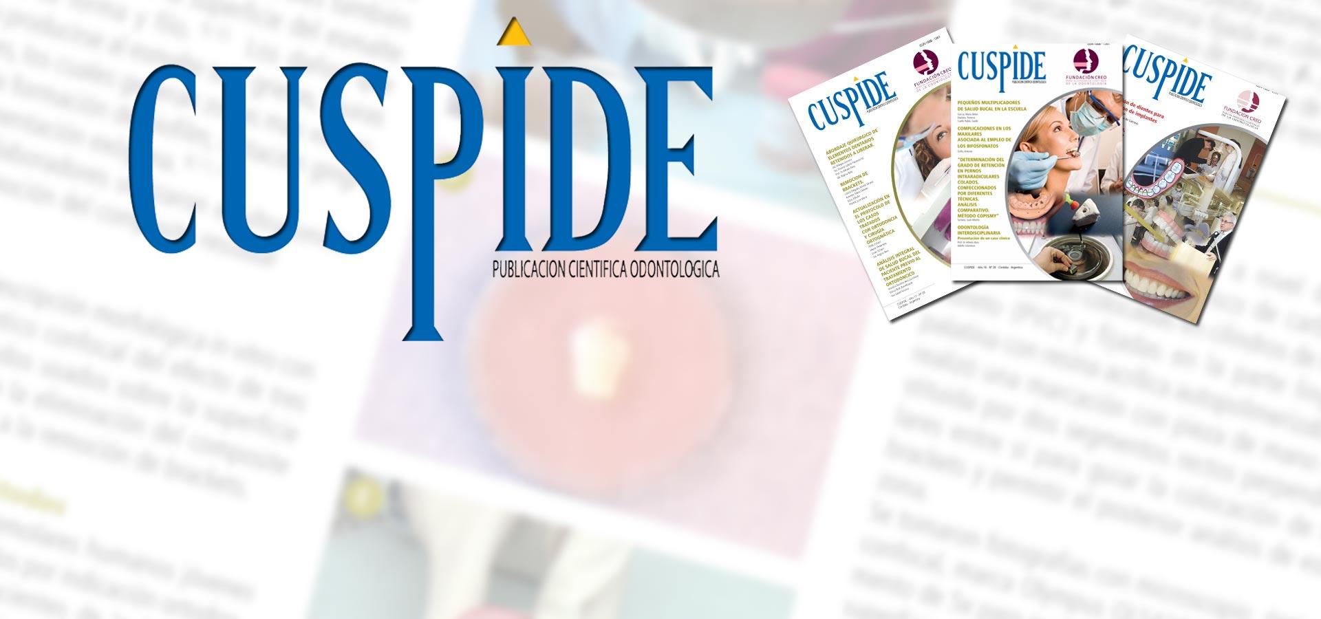 slider-4-cuspide1