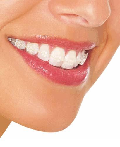 Curso de Ortodoncia Nivel Avanzado