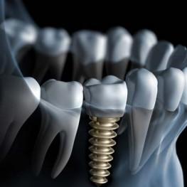 Imagen de un implante