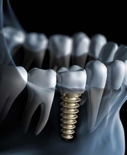 Rehabilitación y Regeneración Ósea con Implantes