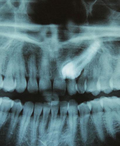 Curso de Cirugía: Elementos Retenidos