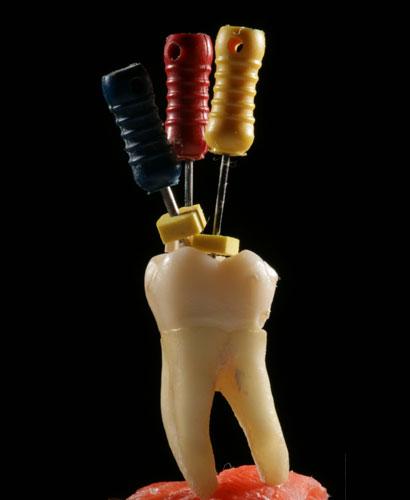 Curso de Endodoncia – Nivel II