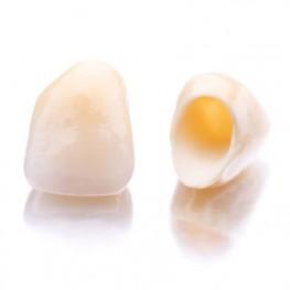 restauraciones dentales en cerámicas libres de metal