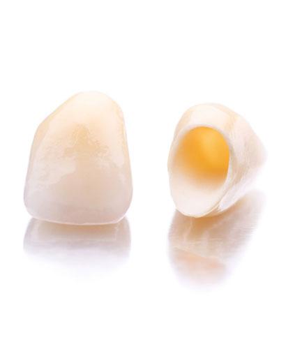 Curso de Estética Dental: Carillas y Coronas de porcelana libres de metal