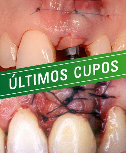 Espesor Biológico en dientes e implantes.