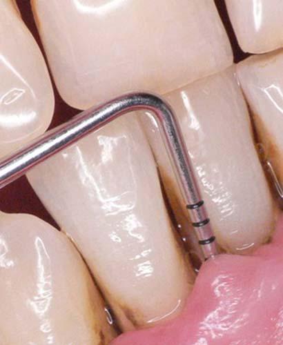 Curso de Periodoncia: Entrenamiento en cirugía plástica periodontal