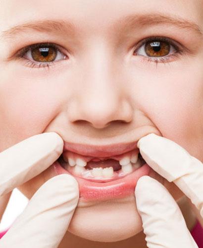 Traumatismos Dentarios