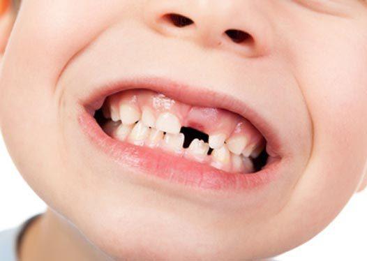 ¿Cómo se caen los dientes de leche y salen los definitivos?