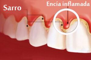 gingivitis1
