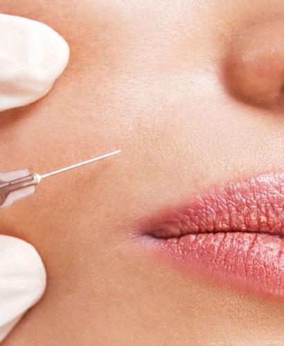 Escultura Facial y Labial | Técnicas de Toxina Botulínica
