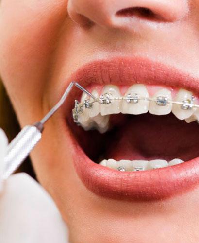 Curso de Posgrado en Ortodoncia Nivel Inicial