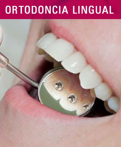 Curso de Ortodoncia Lingual Clínico