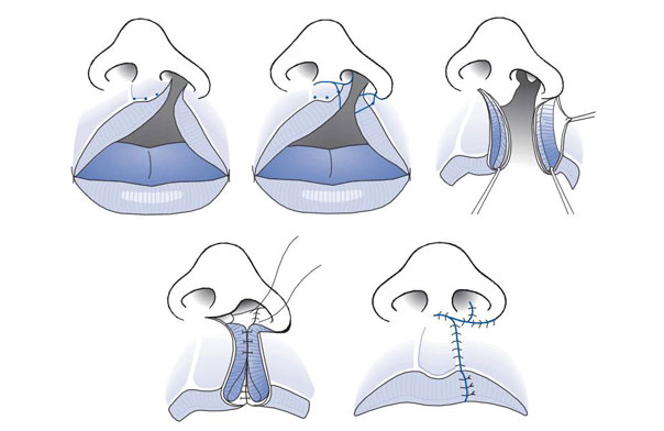 Caso Clínico De Fisura Labio Alvelo Palatina Bilateral Compleja (Flap)