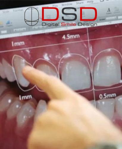 Diseño Digital de Sonrisas (DSD)