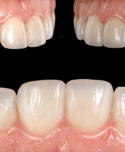 Jornada de Estética Dental – Restauraciones del Sector Anterior