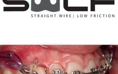 #LecturaRecomendada: Ortodoncia Técnica Straight Wire Low Friction: Nuestra Prescripción