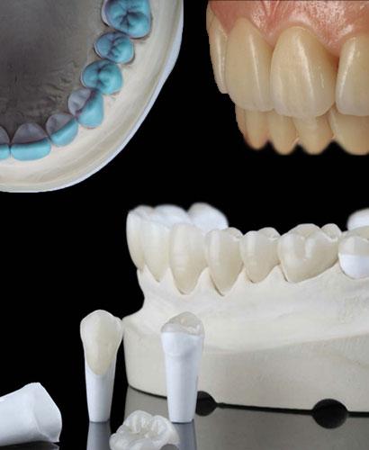Oclusión y Rehabilitación Oral