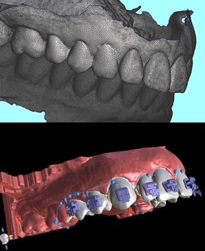 Odontología Digital con enfoque en la Ortodoncia