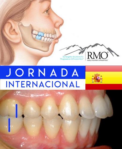 Ortodoncia Digital – Clase II Mandibular