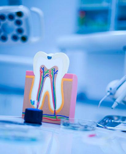 Curso de Endodoncia de alta complejidad – Recursos y estrategias clínicas