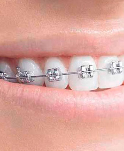 Curso de Ortodoncia Sistema MBT