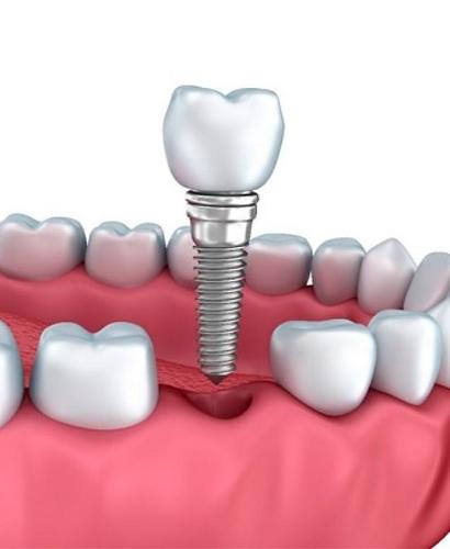 Curso Rehabilitación Oral con Implantes
