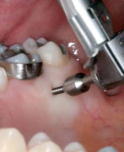 La Ortodoncia avanza pero la Biomecánica nunca pasa de moda