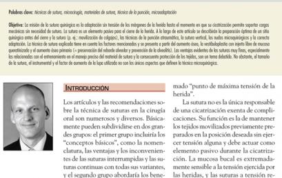 #LecturaRecomedada: Técnicas de sutura en implantología
