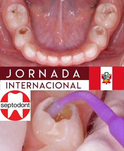 Terapia pulpar en dientes temporales: Nuevas Alternativas