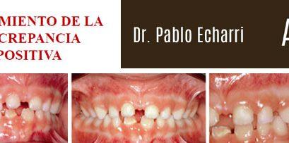 #LecturaRecomendada:  Ortodoncia – Tratamiento de la Discrepancia Positiva