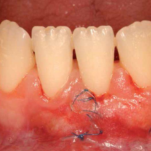 #LecturaRecomendada Cirugía plástica periodontal: Tratamiento de una recesión gingival clase III de Miller mediante técnica bilaminar, injerto de tejido conectivo y amelogeninas