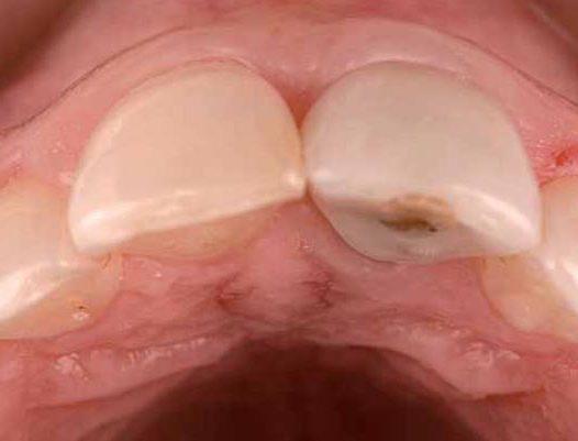 #LecturaRecomendada – Compensando la reabsorción alveolar con injertos de tejido conectivo