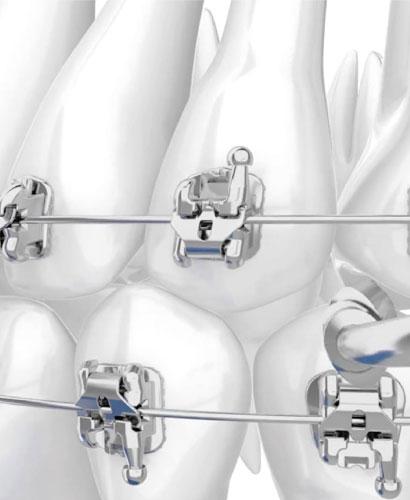 Ortodoncia acelerada facilitada por Autoligados.