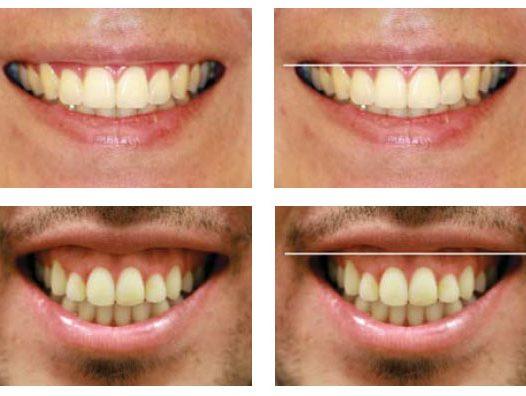 #LecturaRecomendada – Alternativas de tratamiento de la Sonrisa Gingival