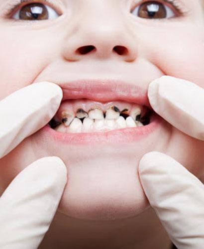 Odontopediatría: Cariología en Niños – 100% ONLINE
