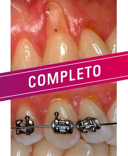 Periodoncia: Cirugía plástica periodontal en áreas estéticas – 100% ONLINE