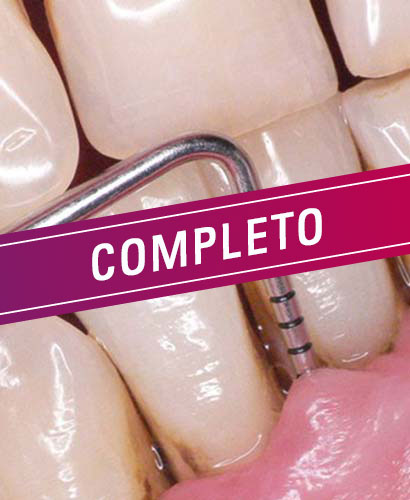 Periodoncia: Cirugía plástica periodontal en áreas estéticas