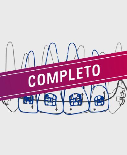 Biomécanica en Ortodoncia Actual – 100% ONLINE