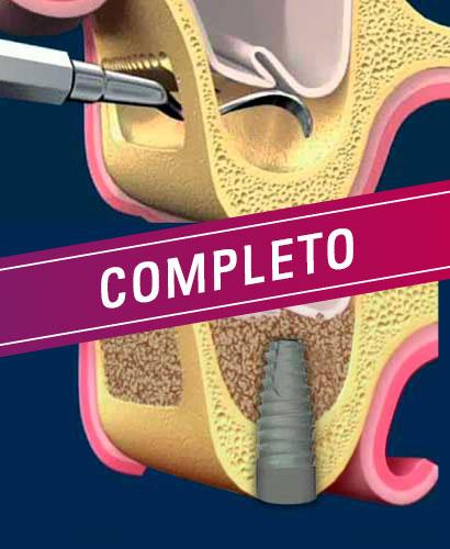 Elevación de piso de senos maxilares – 100% ONLINE