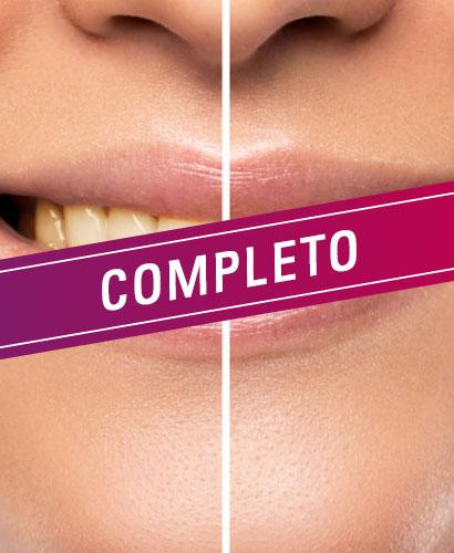 Blanqueamiento Dental – 100% ONLINE