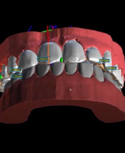 Ortodoncia Digital – 100% ONLINE