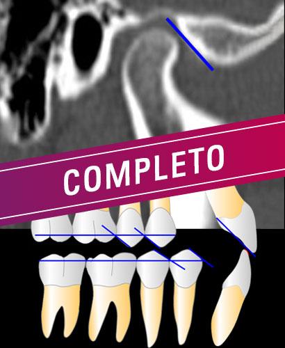 ATM y OCLUSIÓN para ortodoncistas – 100% ONLINE